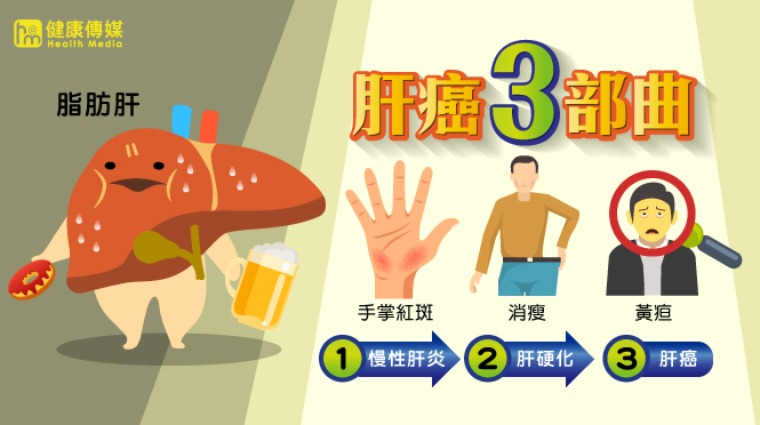 型 肝炎 c 慢性