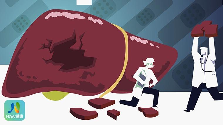 C型肝炎口服新藥納健保 患者不再為藥費「肝」著急